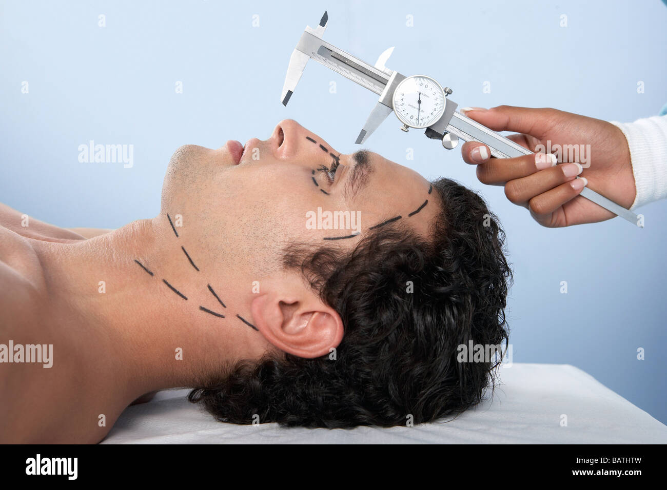 Cosmetic surgery. Vernier calipers being used by a surgeon to measure the length of the nose of a patient - Stock Image