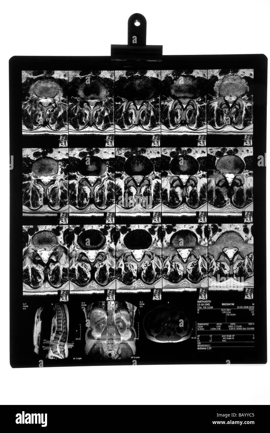 M. R. I. Scan of Male Backbone - Stock Image
