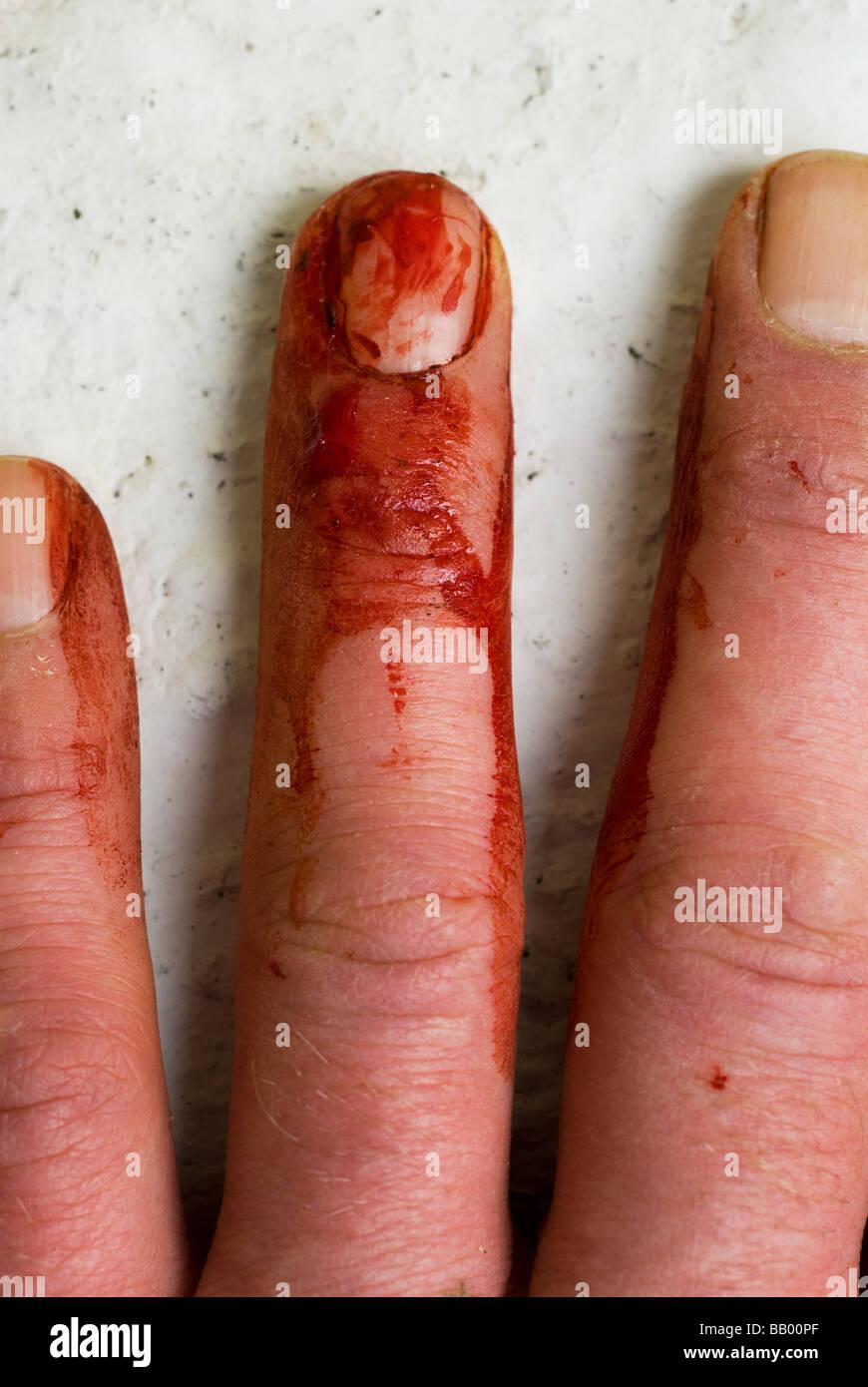photograph of bleeding finger cut injury - Stock Image