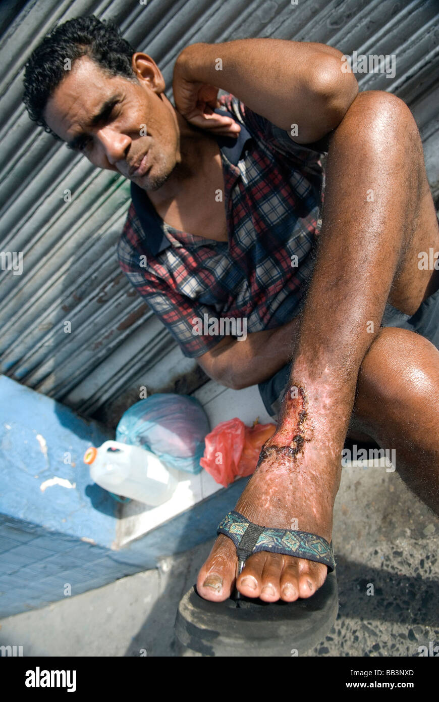 This man in Panama City was stung by a stingray 7 years ago. Due to the expenses of medical aid the wound is still - Stock Image