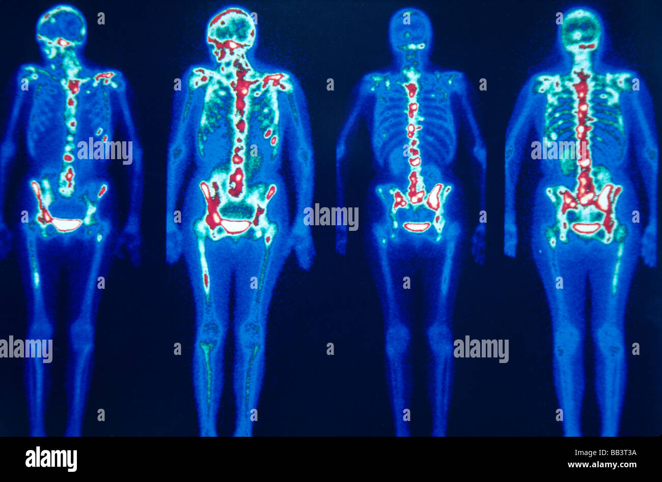 Nuclear medical bone scan, multiple metastatic lesions on lugs - Stock Image