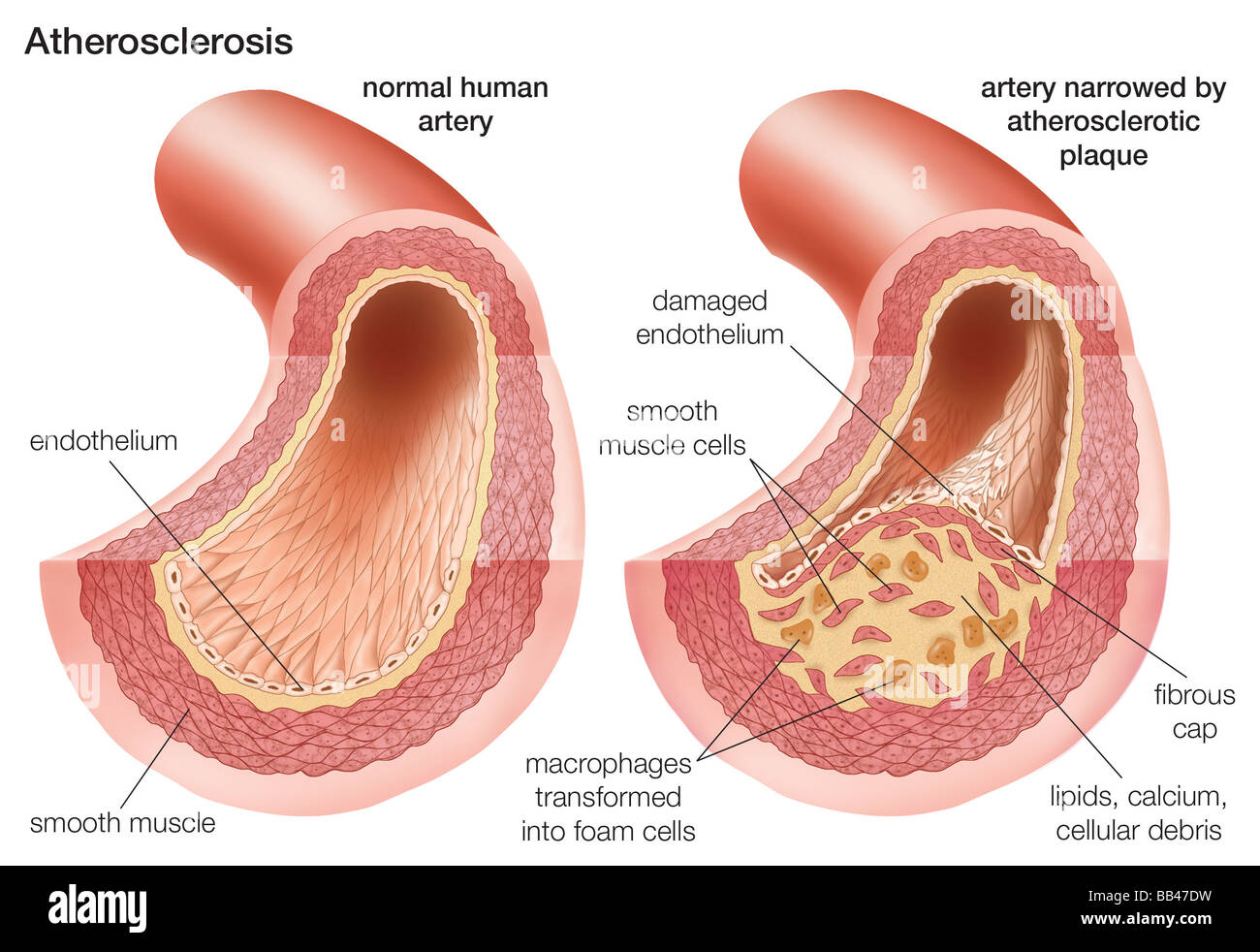 Atherosclerosis: Comparison of a normal artery with an artery Stock ...