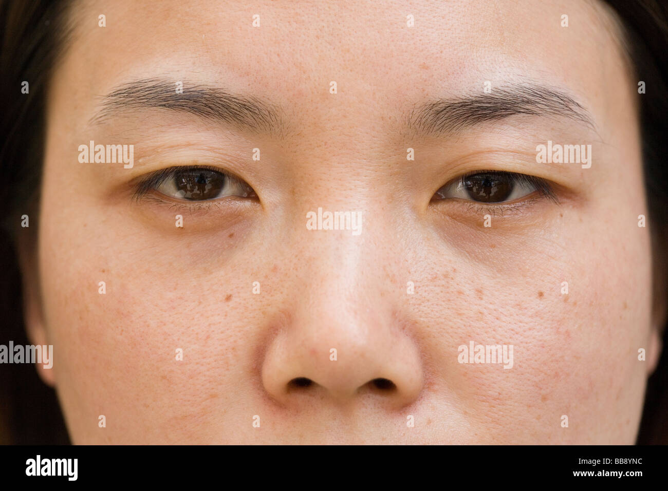 Zhao Yan, 27,  a nurse,  is about to have a plastic surgery operation to give her double eyelids - Stock Image