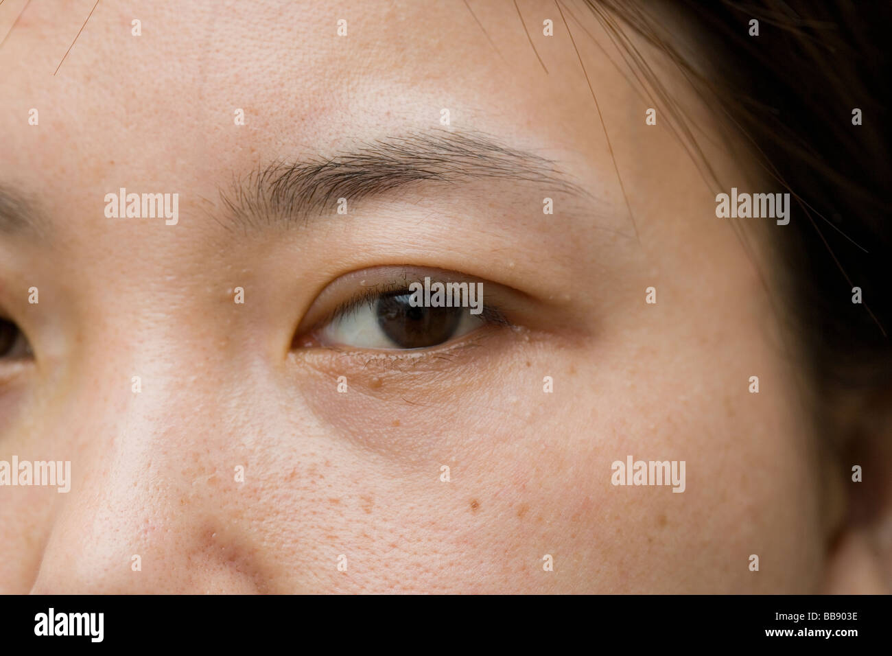 Zhao Yan, 27, one week after an operation to give her double eyelids - Stock Image
