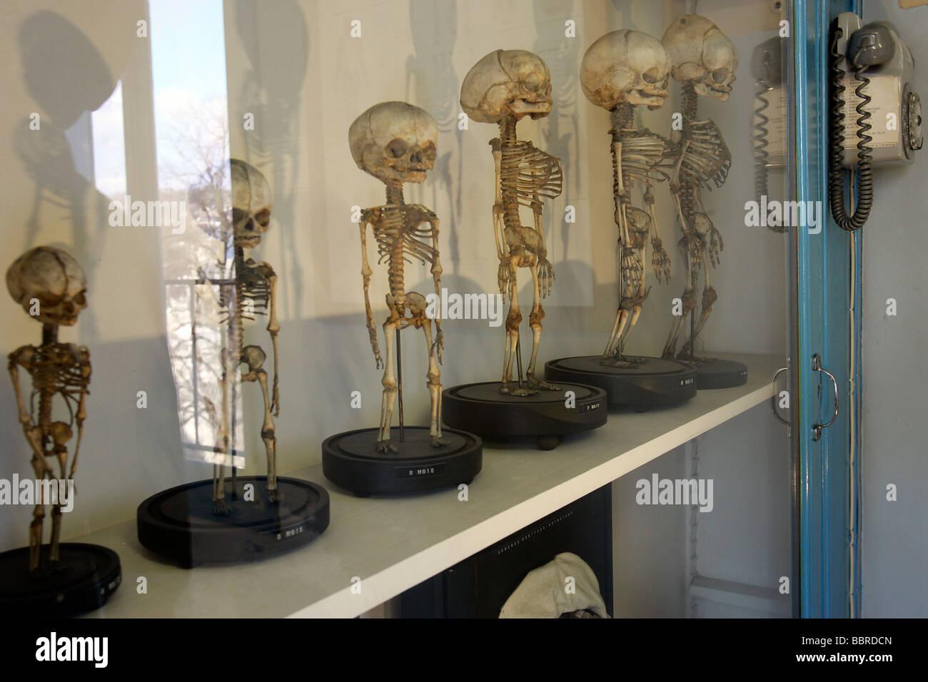 Series Of Human Fetus Skeletons Hall Of Human Anatomy Museum Of