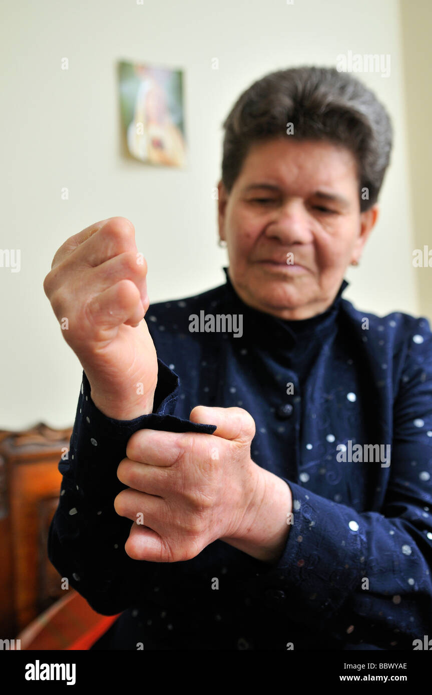 Leprosy patient, 72 years, with crippled hands, closes her blouse's button, Bogota, Colombia, South America - Stock Image