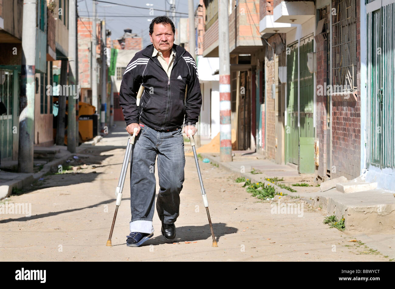 Leprosy patient with crutches on the street, Bogota, Colombia, South America - Stock Image