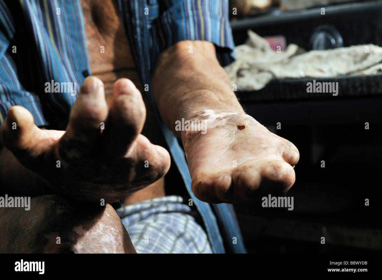 Crippled and injured hands of a leprosy patients, leprosy colony Agua de Dios, Colombia, South America - Stock Image