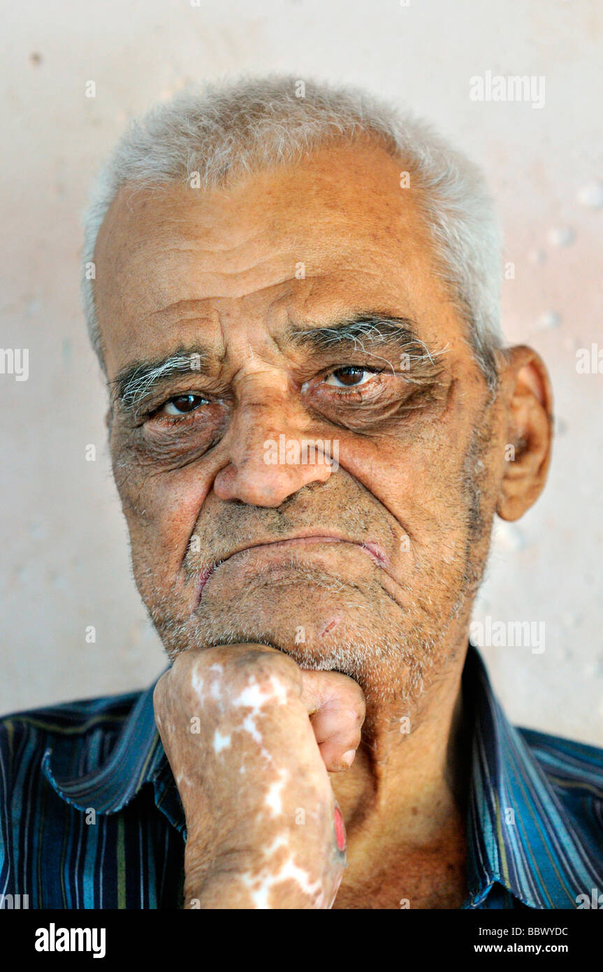 Leprosy patient, 78 years, with a crippled hand, thoughful gaze, leprosy colony Agua de Dios, Colombia, South America - Stock Image
