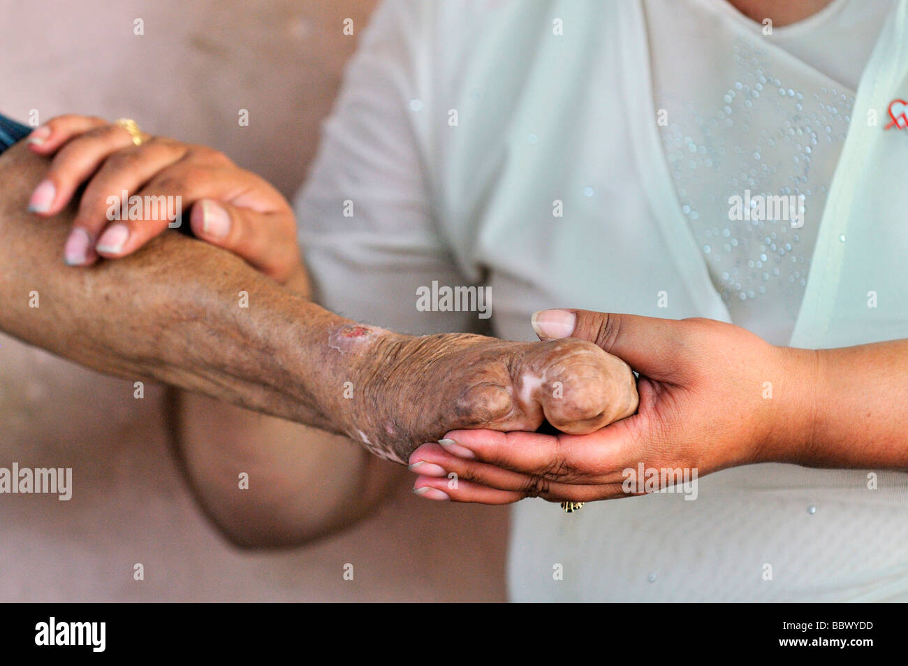 Nurse holding the hands of a leprosy patient, leprosy colony Agua de Dios, Colombia, South America - Stock Image