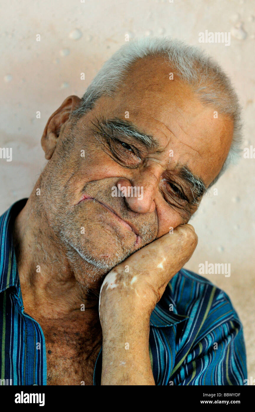 Leprosy patient, 78 years, with a crippled hand, sad smile, leprosy colony Agua de Dios, Colombia, South America - Stock Image