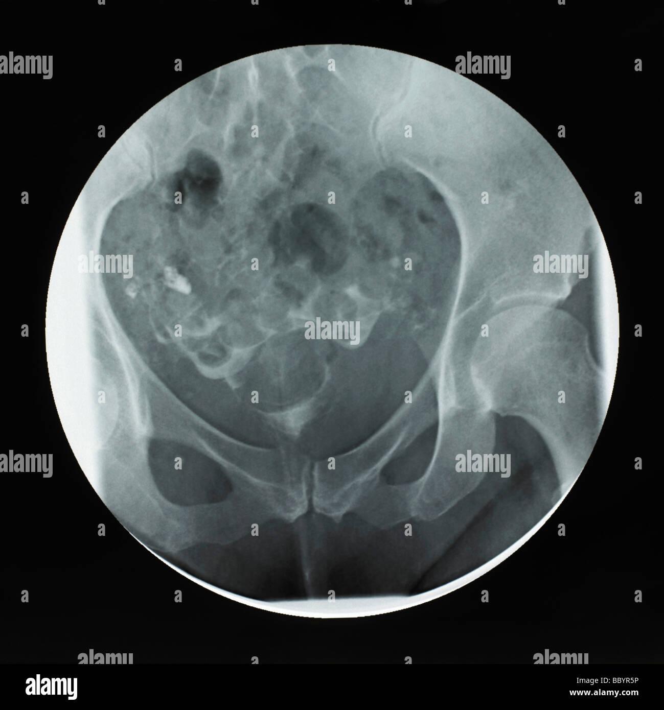 Ultrasound - Stock Image