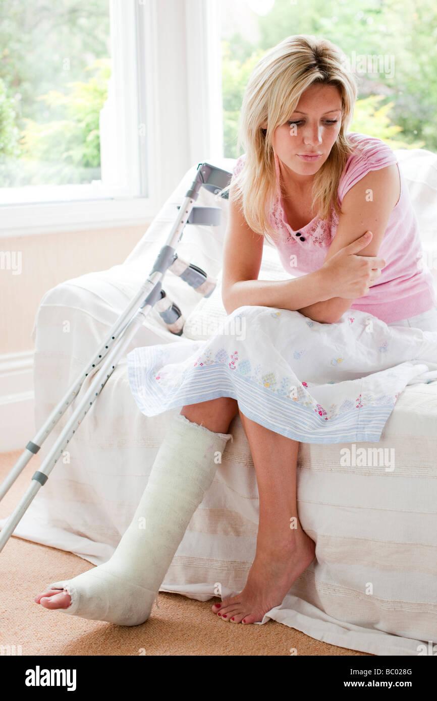 Woman with broken leg - Stock Image