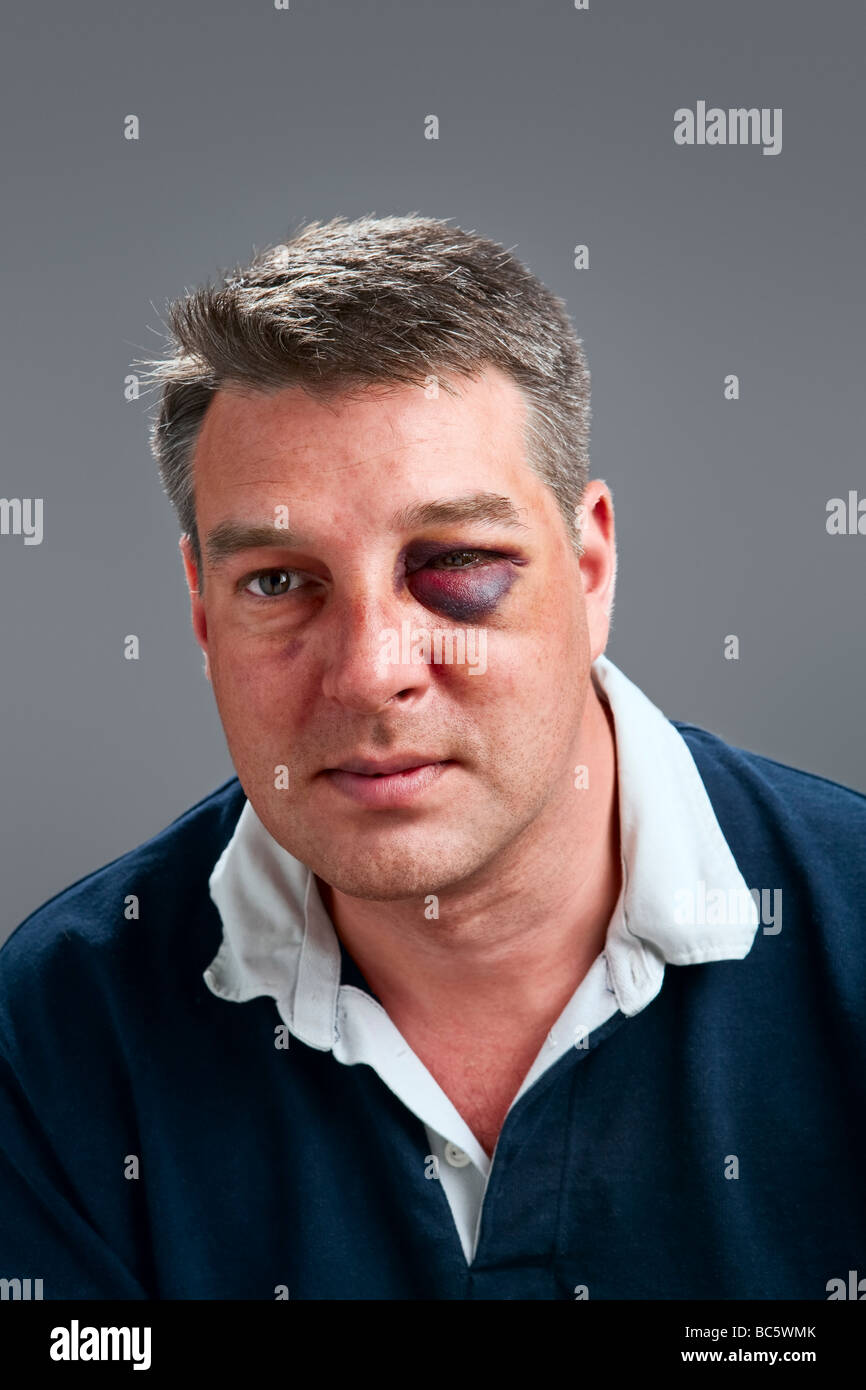 Portrait of a Caucasian male with bruised black eye - Stock Image