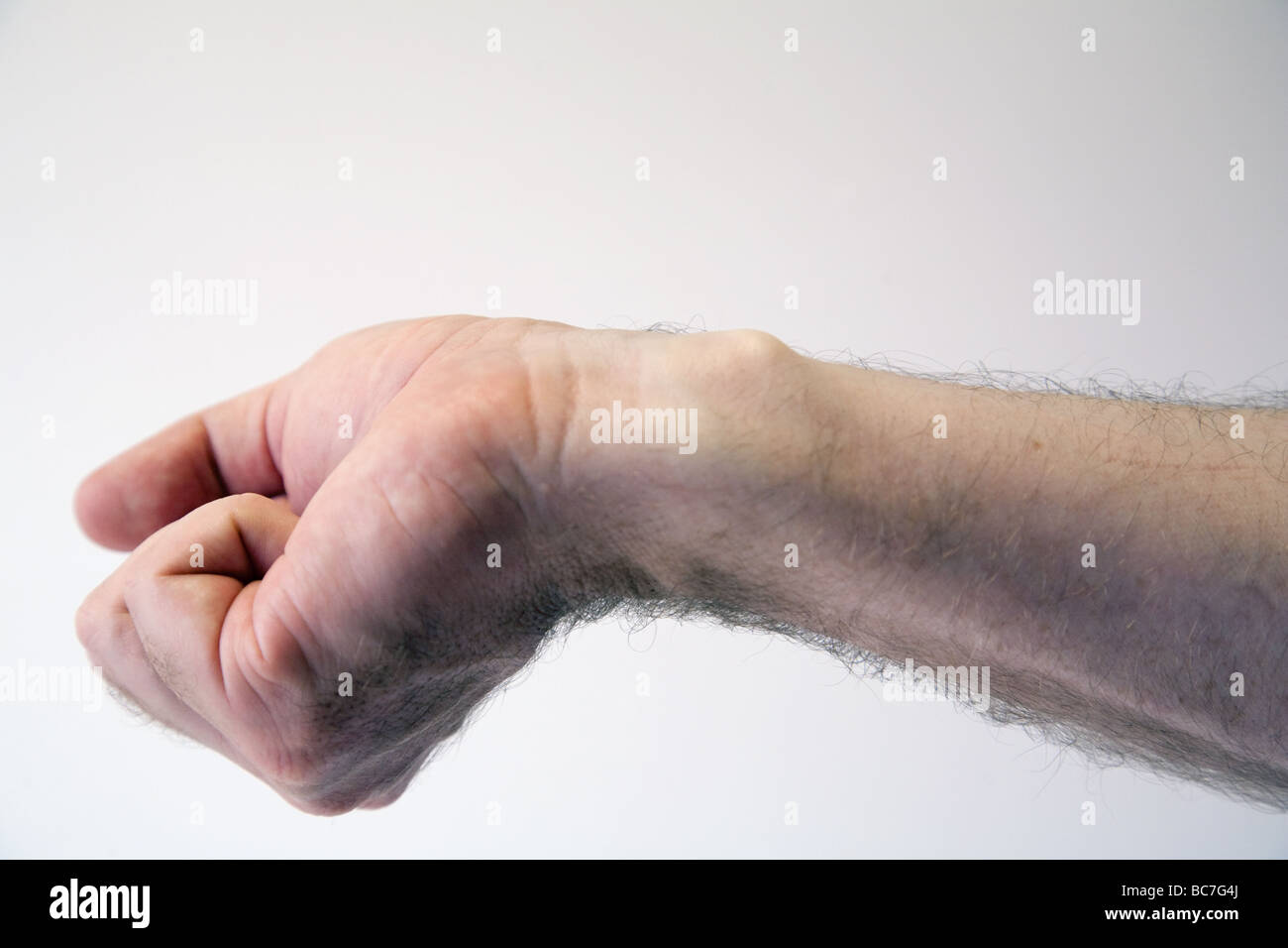 A ganglion (cyst from the joint) on the wrist of a middle aged man - Stock Image