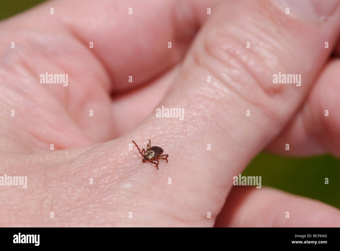 Female American dog tick Dermacentor variabilis also known as the wood tick It is on a person s hand - Stock Image