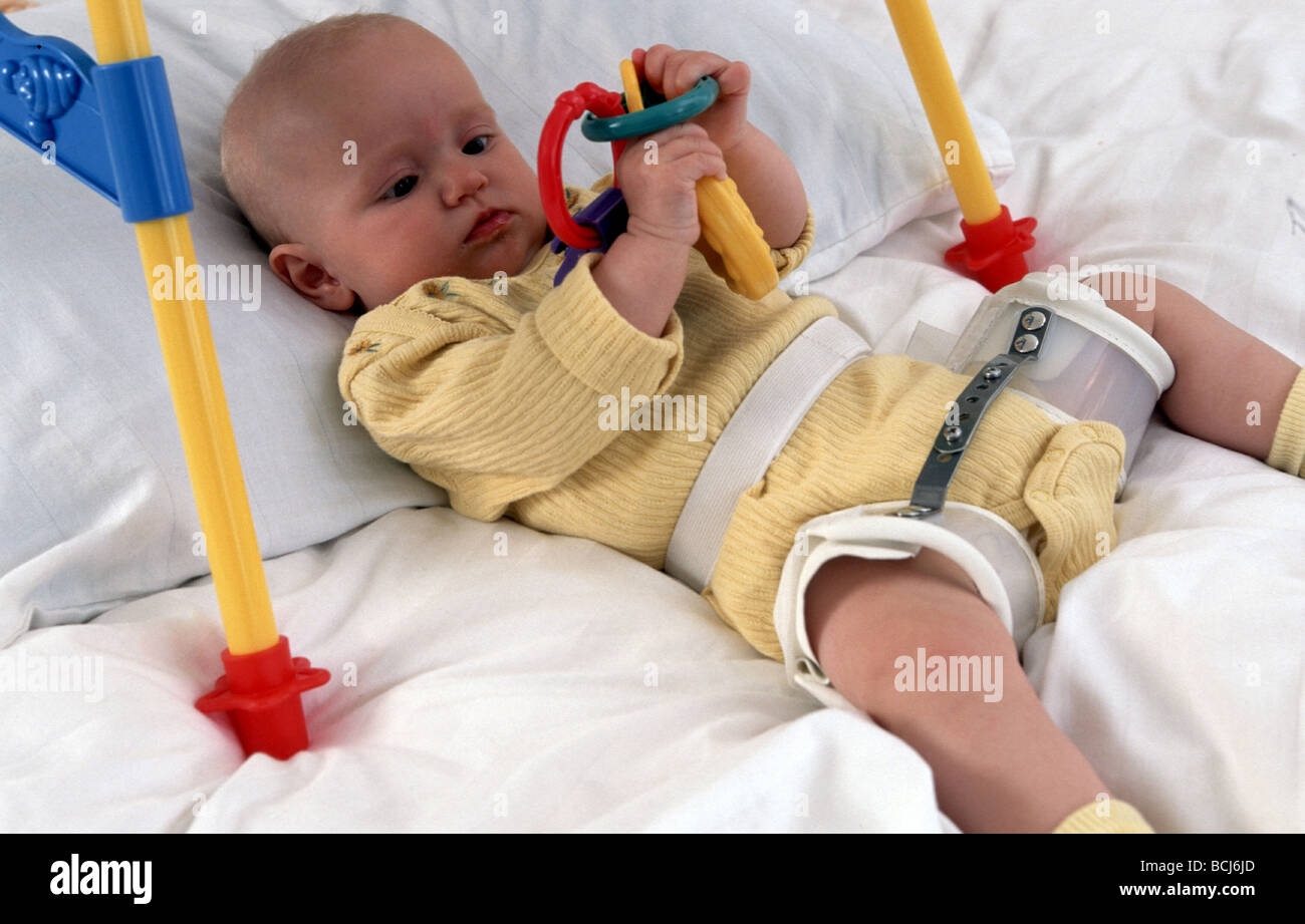 young baby with hip dysplasia splint pla with toy, lay on back