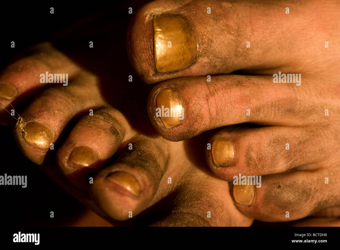 A woman's feet after completing a firewalk. - Stock Image
