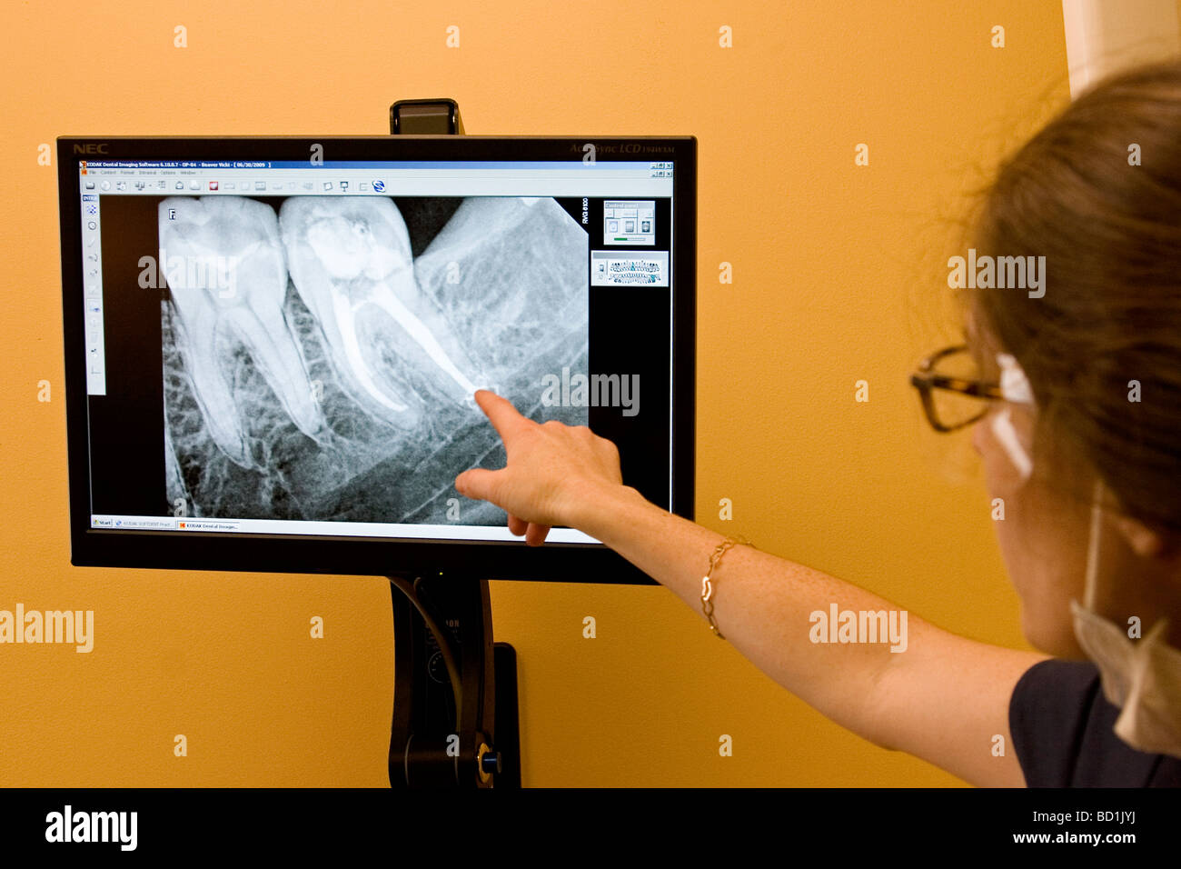Dentist points out the area teeth, tooth that needs work on xray, x-ray. - Stock Image