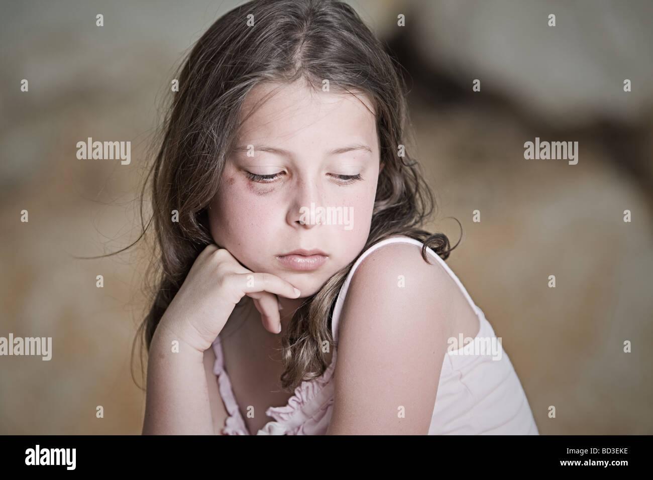 Powerful Shot of a Sad Child with Black Eye - Stock Image