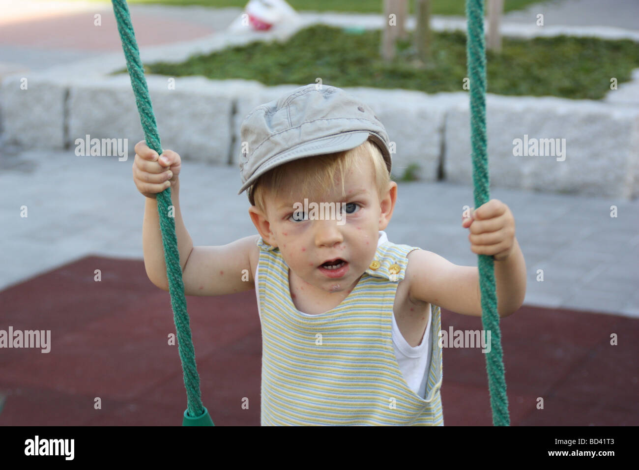 2-year-old boy with chickenpox nevertheless enjoying the playground. - Stock Image