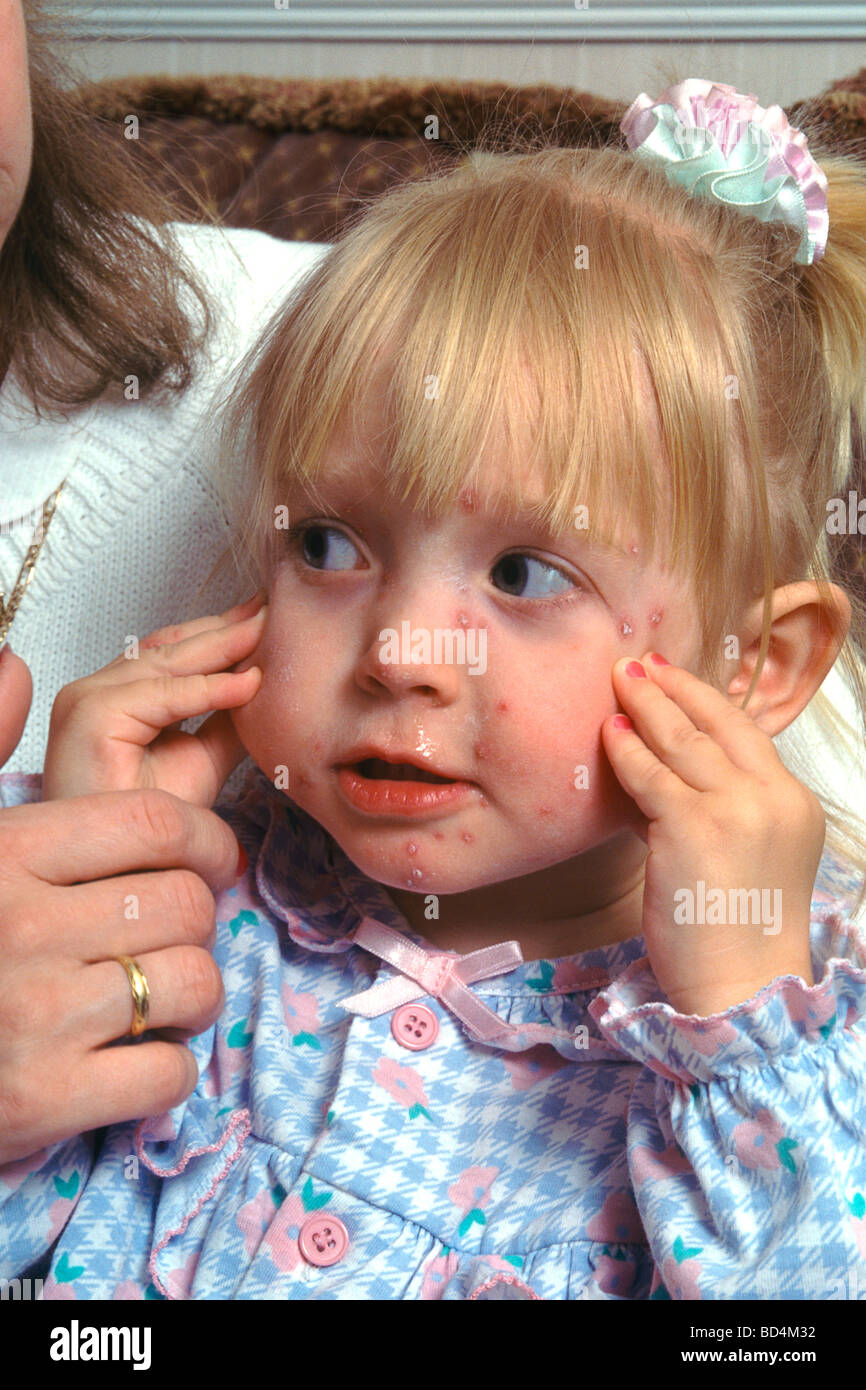Young girl child suffering with Chickenpox Stock Photo