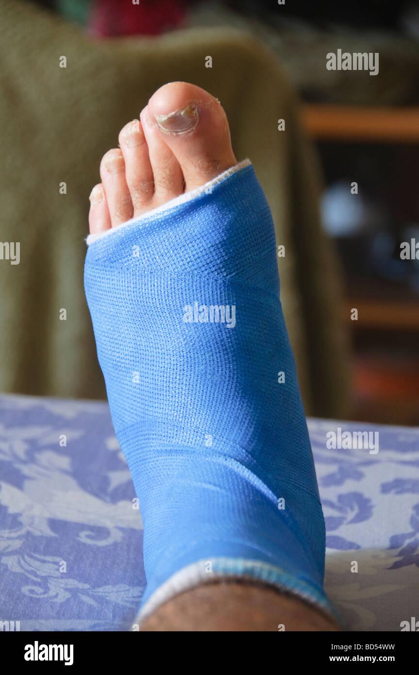 fiberglass cast on a broken ankle Stock Photo: 25314517 - Alamy