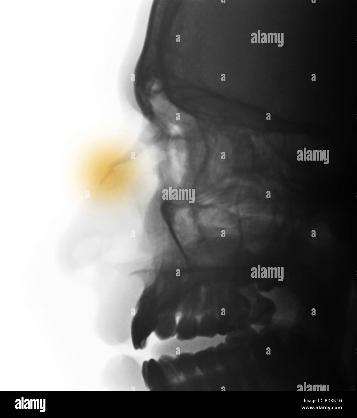 Nasal Bone Stock Photos & Nasal Bone Stock Images - Alamy