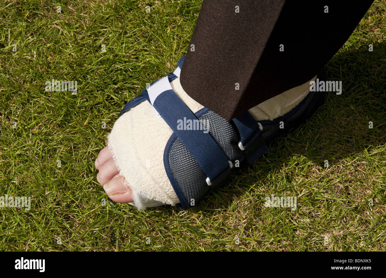 Suited man's foot bandaged up in velco on shoe after bunion surgery operation - Stock Image