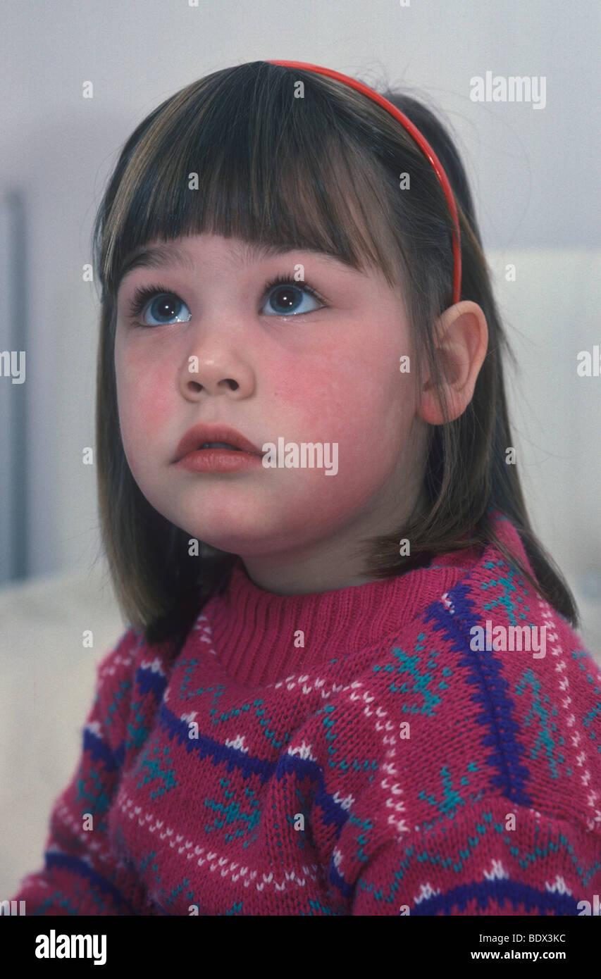child with swollen face as a result of reaction to MMR jab - Stock Image
