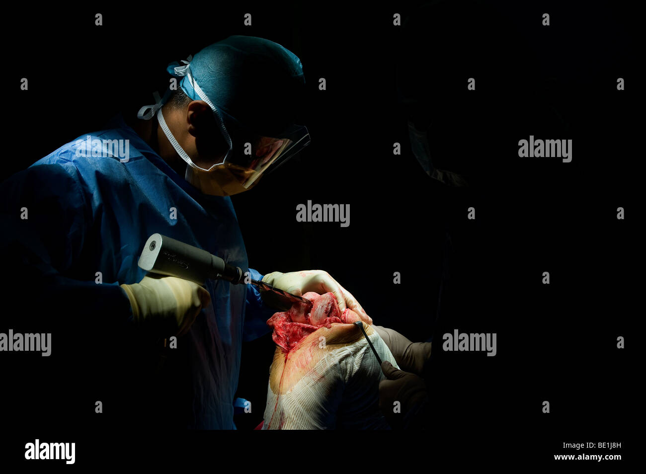 A patient undergoes knee replacement surgery at a West Midlands hospital, after being diagnosed with irreparable - Stock Image