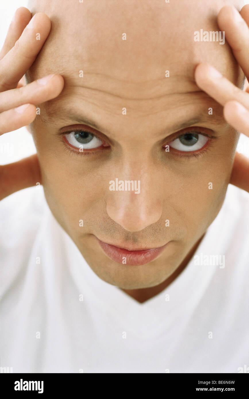 Bald man holding head, looking at camera - Stock Image