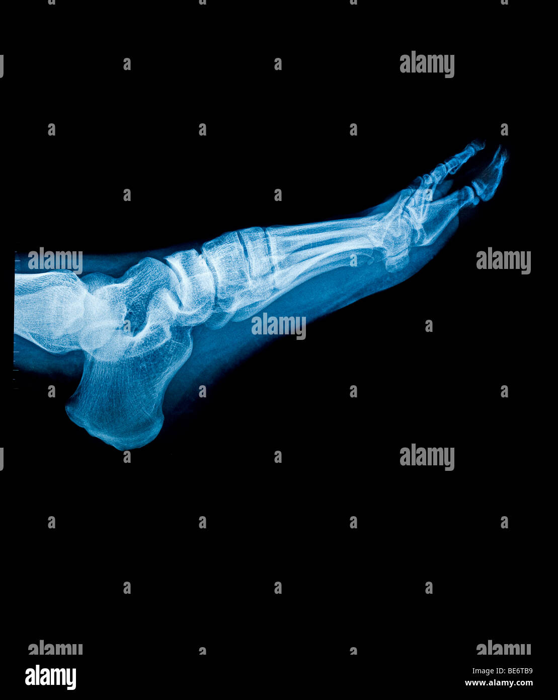 X ray of left foot - Stock Image