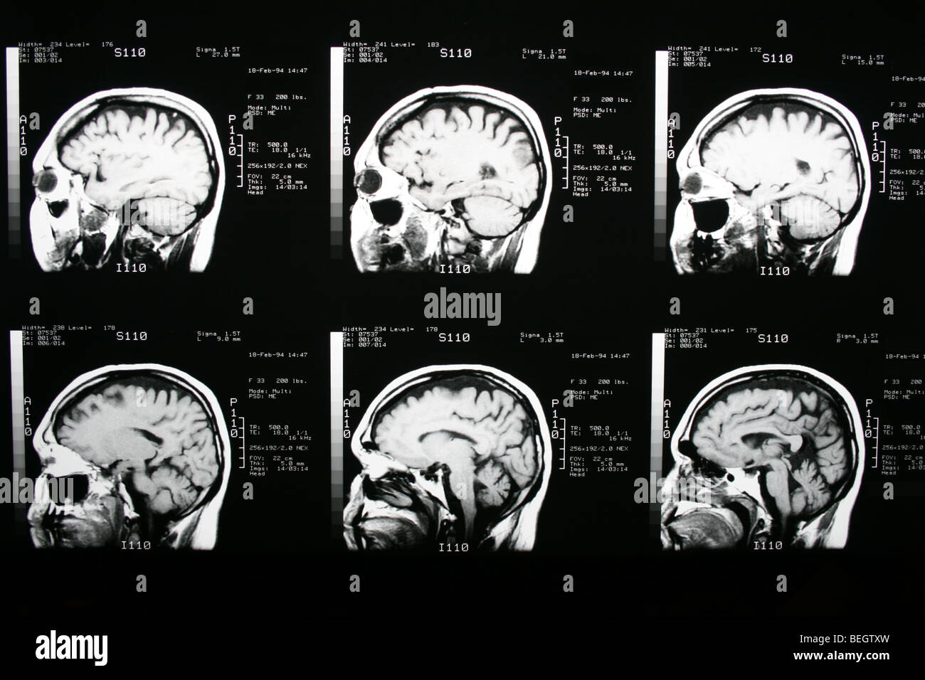 MRI scan of patient's brain with and without contrast ...