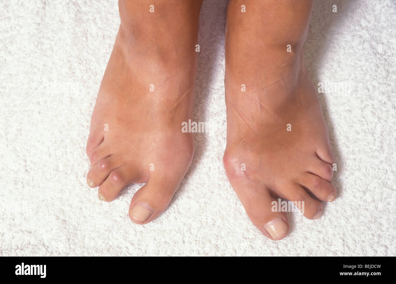 Arthritis Feet High Resolution Stock Photography And Images Alamy
