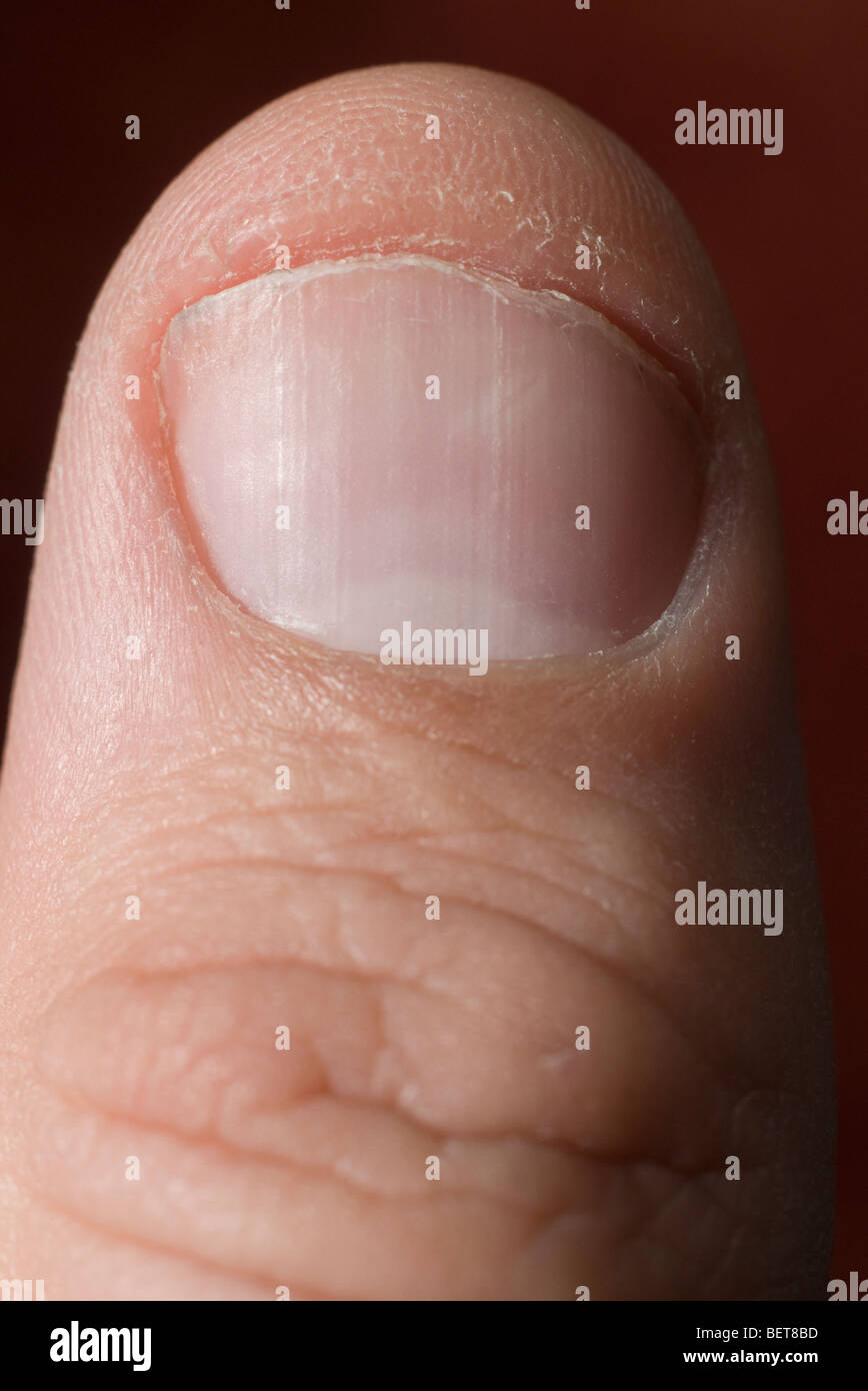 A workmans finger shows a damaged cuticle and lack of care for the ...