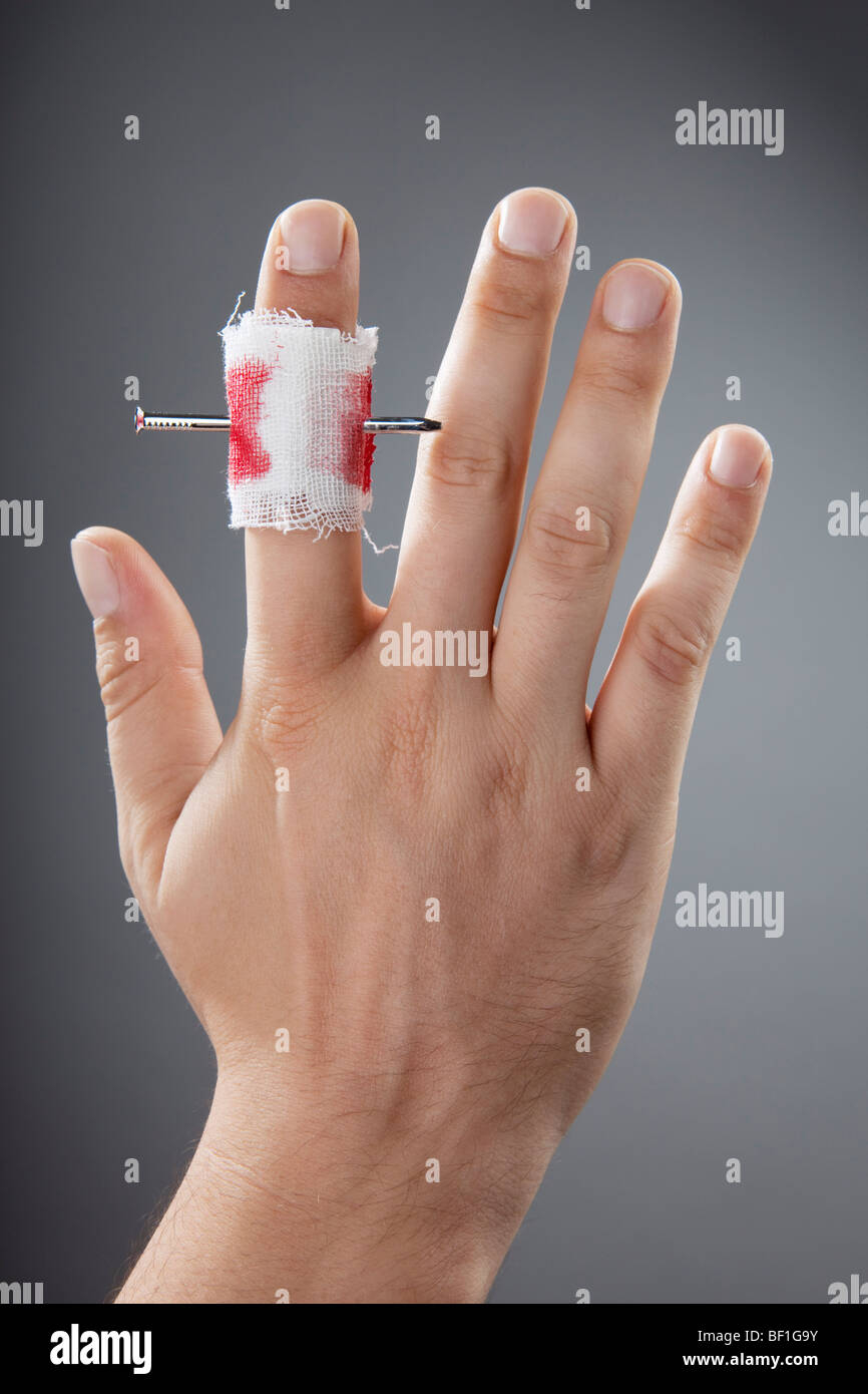 A Nail Piercing A Finger Stock Photo 26464983 Alamy