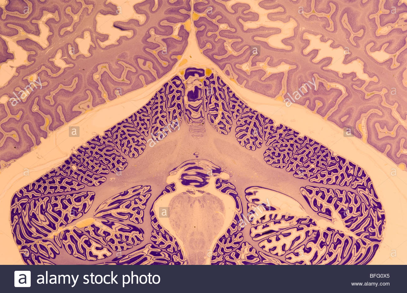 Human brain, National Medical Museum, Washington, D.C. - Stock Image