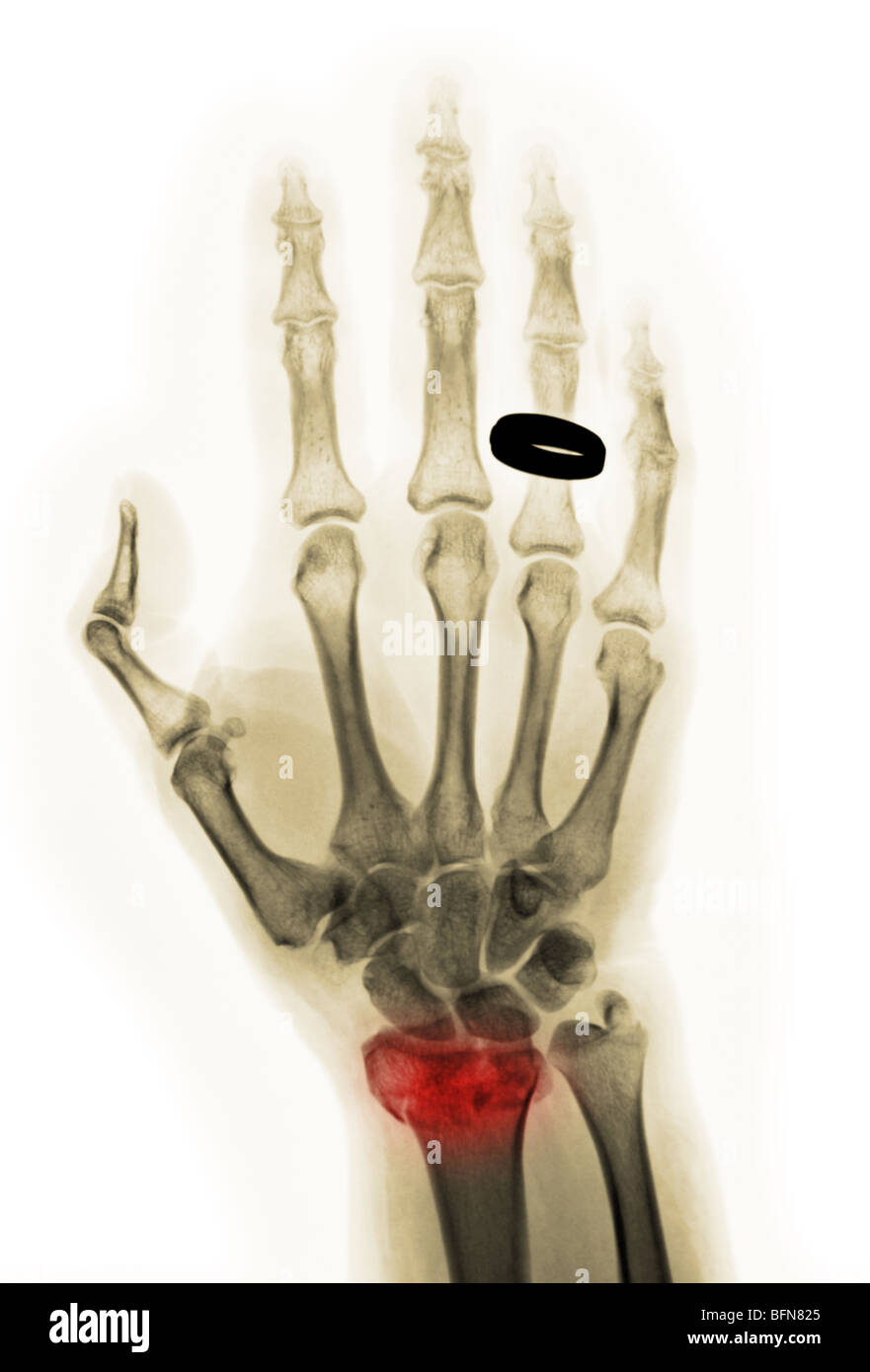 X Ray Showing A Comminuted Fracture Of The Distal Radius Of The