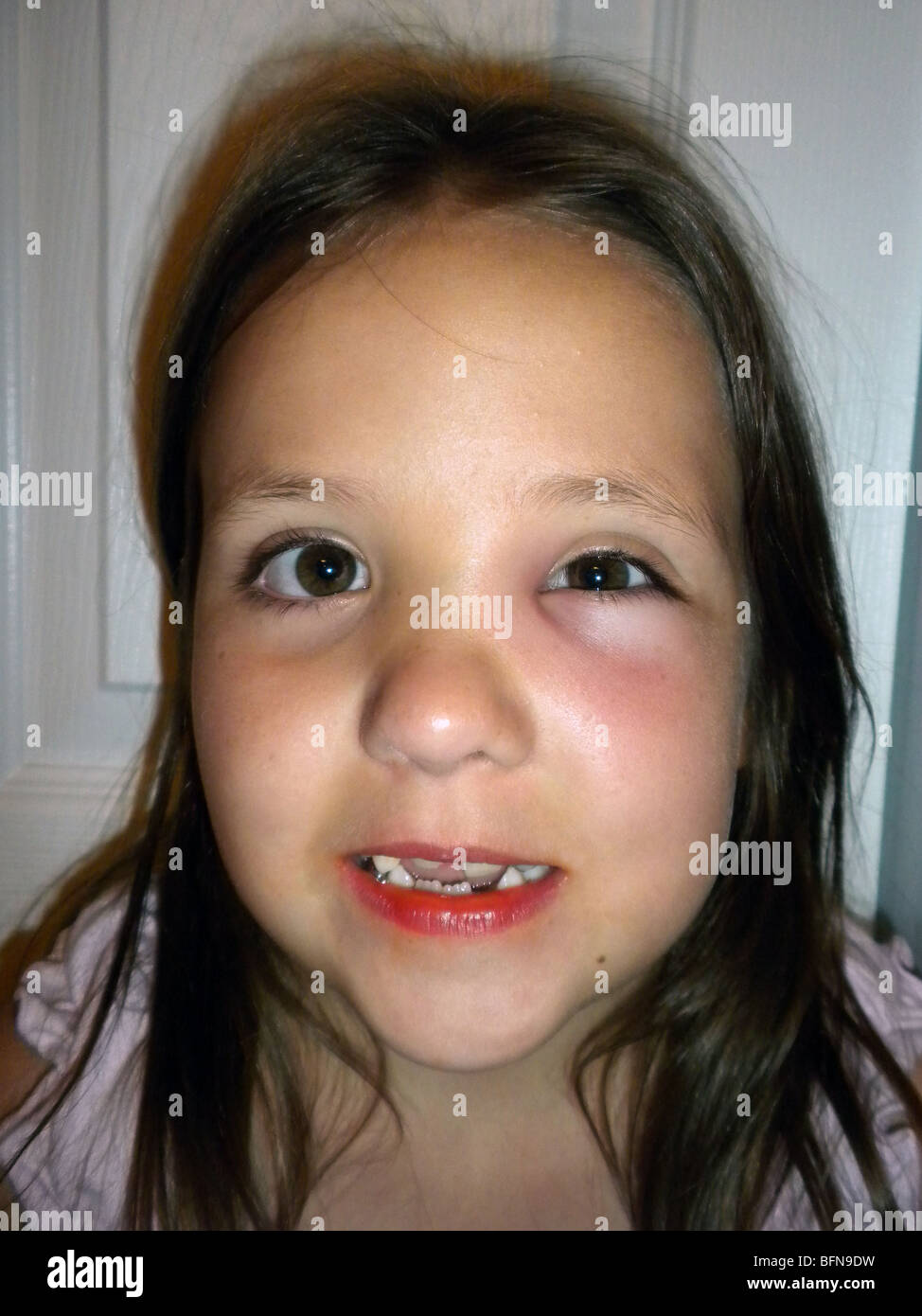 An eight year old girl who was stung near her left eye by a wasp - Stock Image