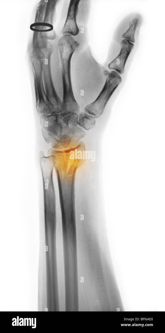 Wrist X Ray Comminuted Fracture Radius Stock Photos & Wrist X Ray ...