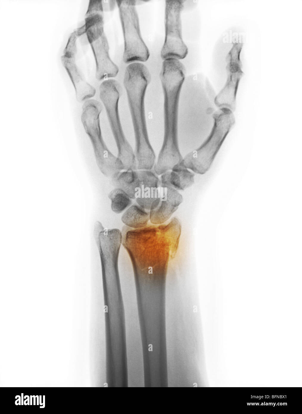 x-ray of a comminuted distal radius wrist fracture Stock Photo ...