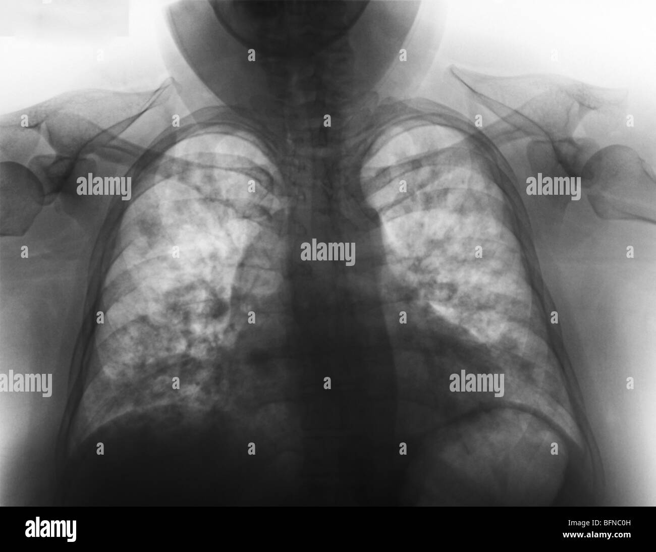 Abnormal chest x-ray showing pneumonia in a 27 year old female with influenza. - Stock Image