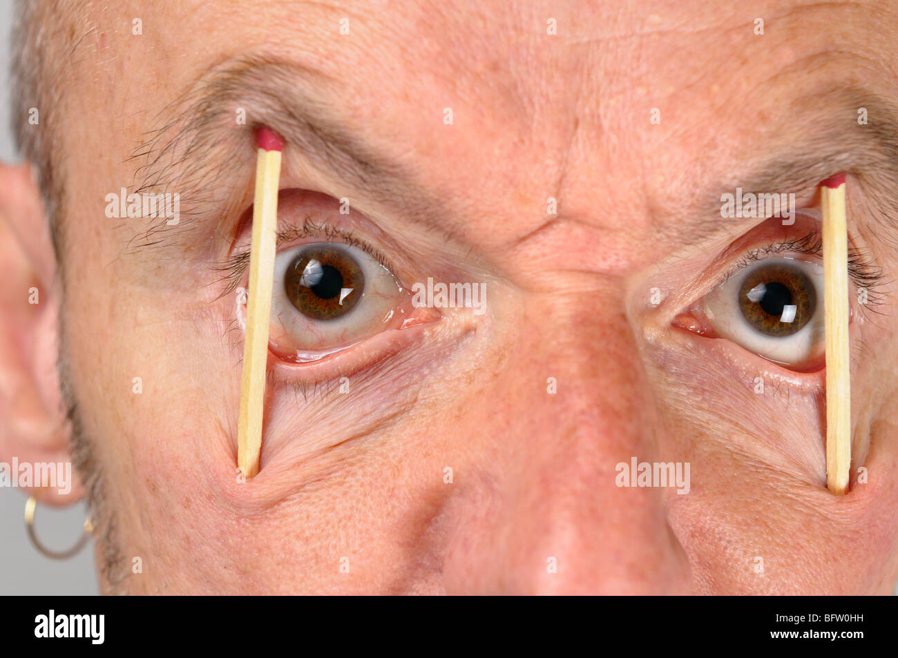 Close up of ugly man keeping eyes wide open with match sticks - Stock Image