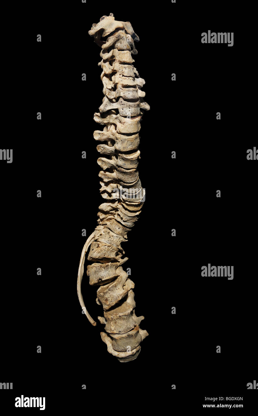 Scoliosis, curvature of the spine - Stock Image