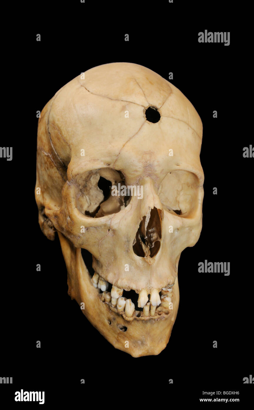 Bullet hole with radiating fractures in human cranium Stock Photo