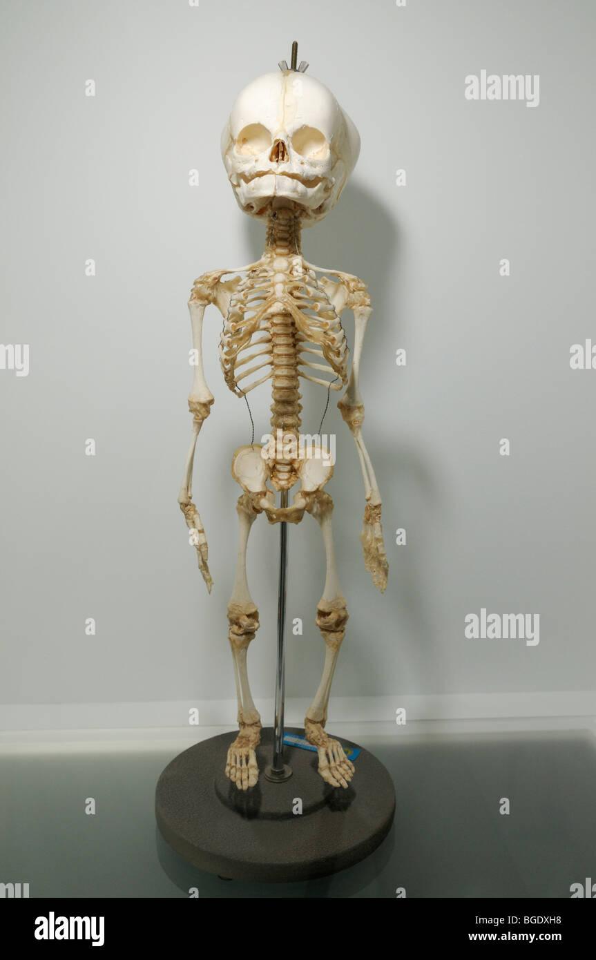 Skeleton of a human fetus - Stock Image