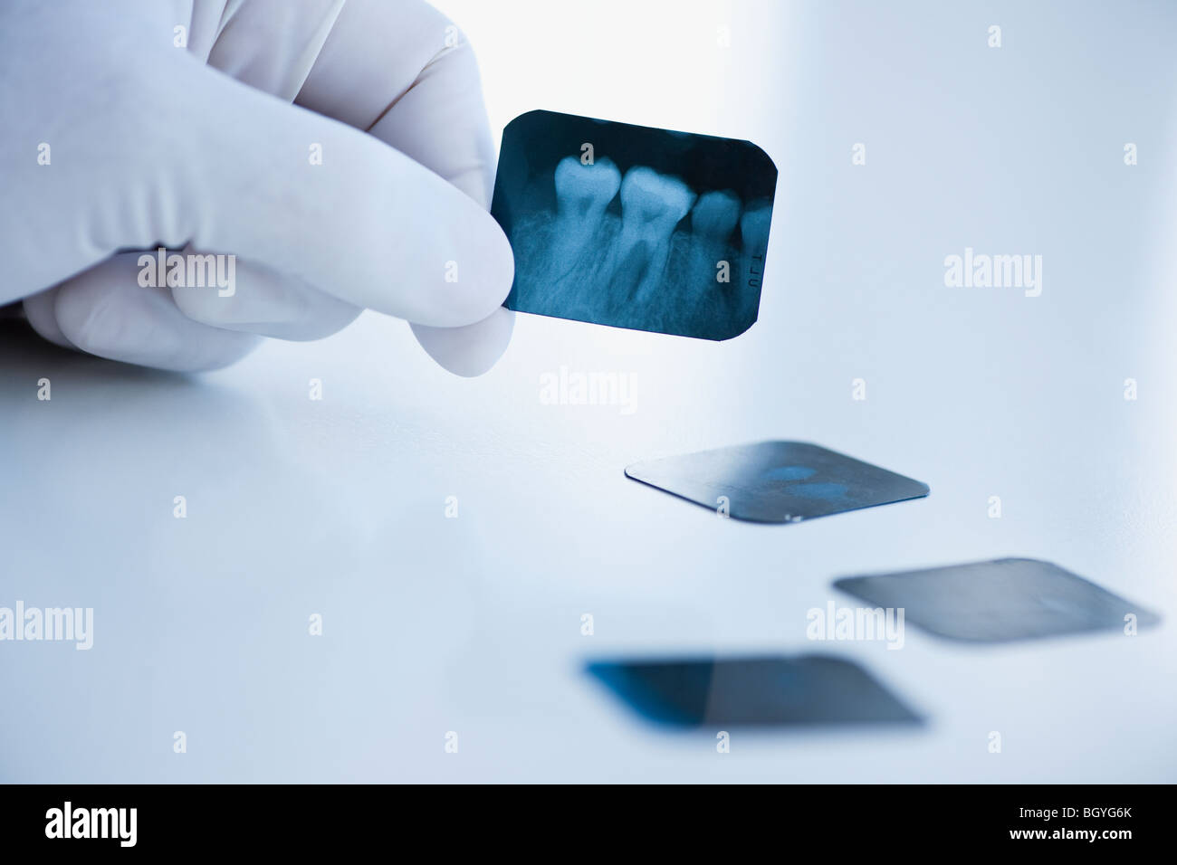 Dental x-ray - Stock Image