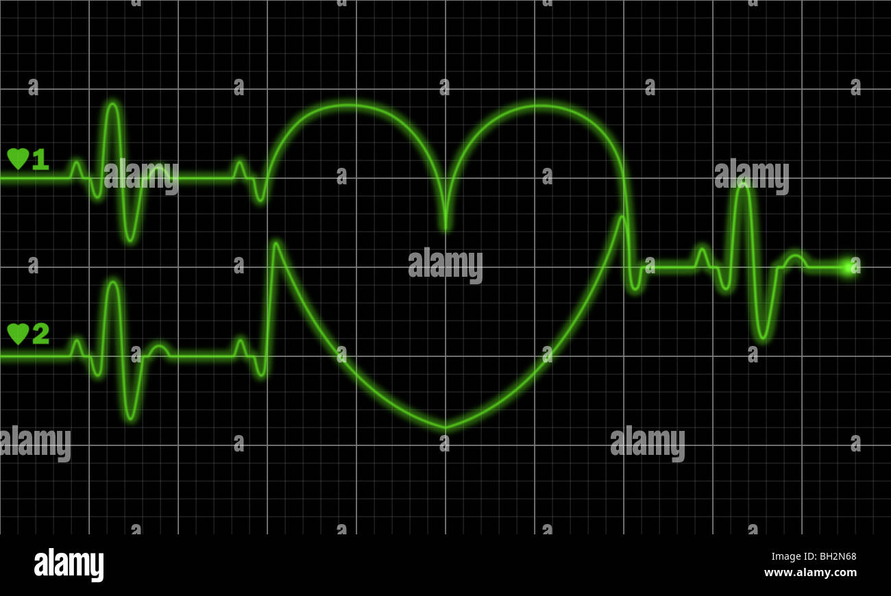 Two pulse traces forming valentine shape on electrocardiograph monitor. Also consider as child-bearing new life - Stock Image