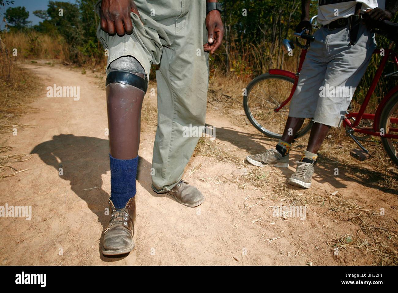 Angolan Sebastian Intcha lost his leg in a landmine explosion. Cassinga, Angola, Africa. - Stock Image